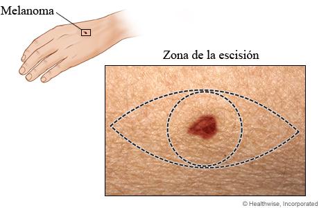 Zona de escisión del melanoma