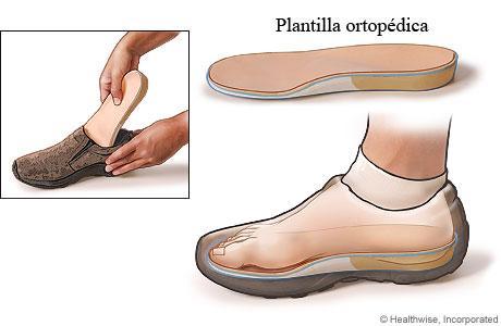 Cómo se usa una plantilla ortopédica