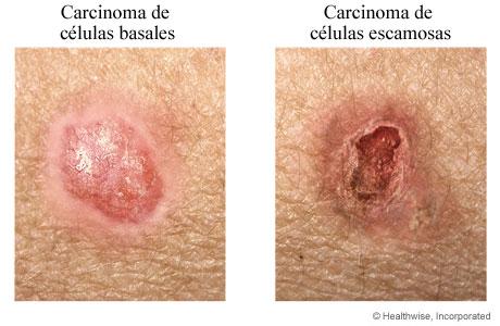 Ejemplos de carcinoma de células basales y escamosas