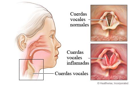 Cuerdas vocales inflamadas en la laringitis
