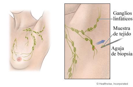 Biopsia de los ganglios linfáticos con aguja gruesa