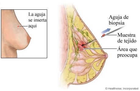 Biopsia de seno con aguja gruesa