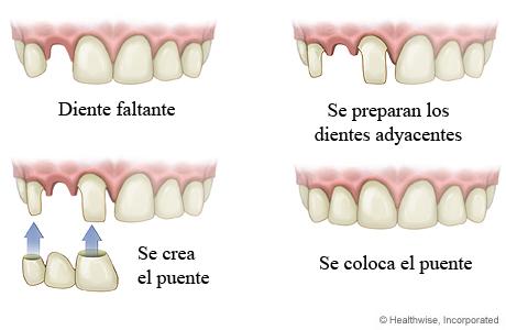 Cómo se coloca un puente para un diente faltante