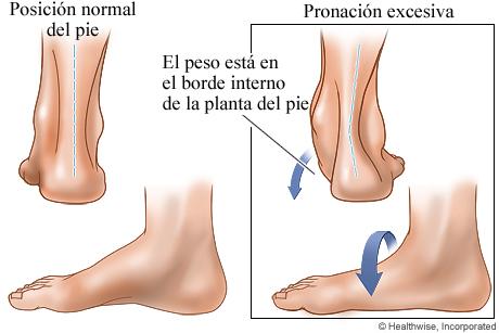 Posición normal del pie y pronación excesiva