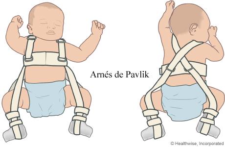 Imagen de un arnés de Pavlik en un bebé