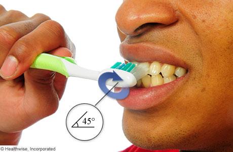 Sostener un cepillo de dientes en un ángulo de 45 grados