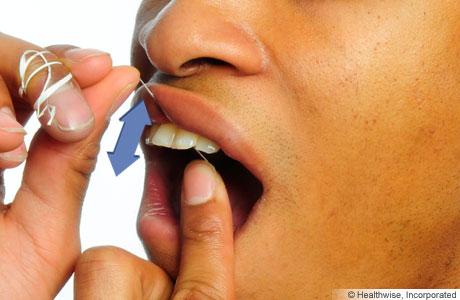 Persona limpiándose los dientes con el hilo dental, mostrando cómo pasarse el hilo dental hacia arriba y hacia abajo entre los dientes