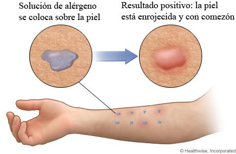 Solución de alérgeno en el brazo y resultado positivo