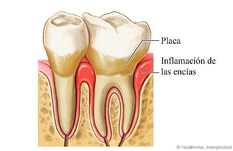 Enfermedad de las encías alrededor de un diente, que muestra placa e inflamación de las encías