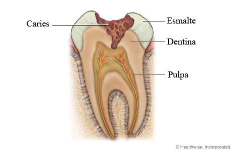 Caries dental a través del esmalte y que llega a la dentina