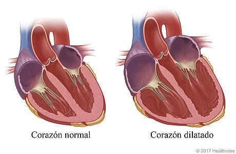 Un corazón normal y un corazón agrandado (dilatado)