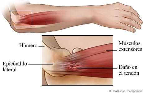 Anatomía del codo de tenista: Vista lateral