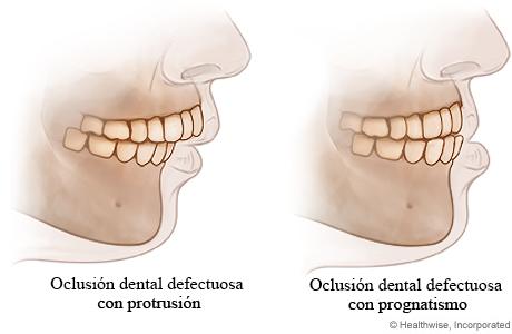 Oclusión dental defectuosa con protrusión y con prognatismo
