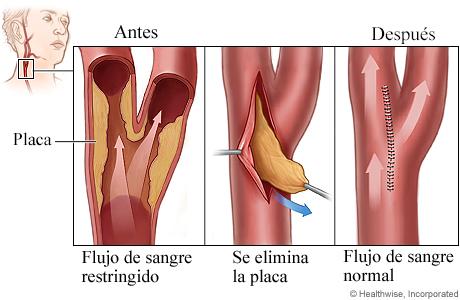 Procedimiento de endoarteriectomía carotídea