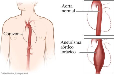 Una aorta normal y un aneurisma aórtico torácico