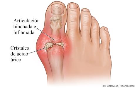 Imagen de la gota en el dedo gordo del pie