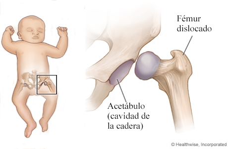 Displasia de cadera en un niño