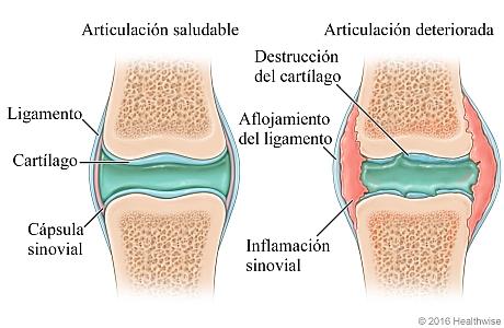 Articulación saludable comparada con una articulación deteriorada