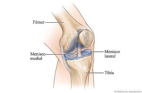Vista ósea de la rodilla izquierda, mostrando los meniscos en los lados externo (lateral) e interno (medial) de la rodilla