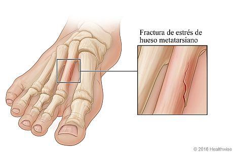 Vista ósea del pie, con detalle de fractura de estrés en un hueso metatarsiano