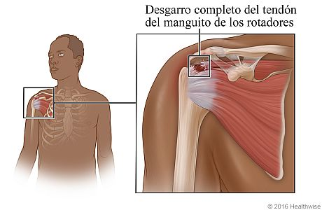Ubicación del manguito de los rotadores en el hombro, con detalle de desgarro completo del manguito de los rotadores