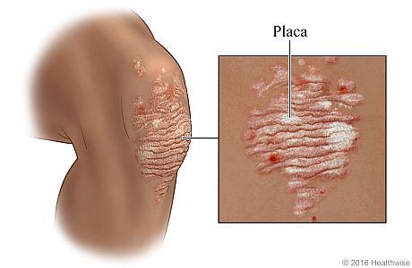 Placa de psoriasis en la rodilla