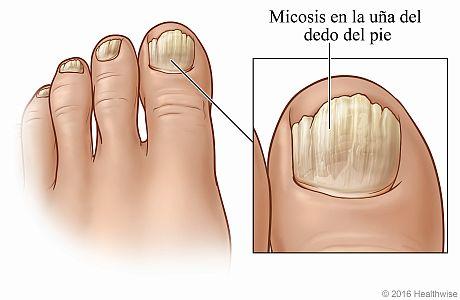 Uñas de los pies que muestran las señales de la micosis de uñas más común, con detalle del dedo gordo del pie