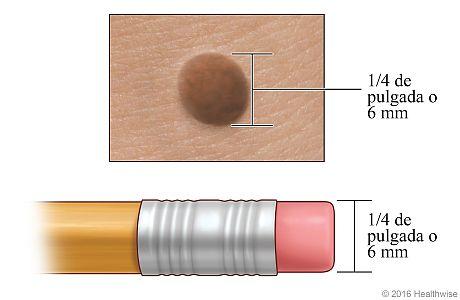 Un lunar, donde se muestra su anchura comparada con la del borrador de un lápiz