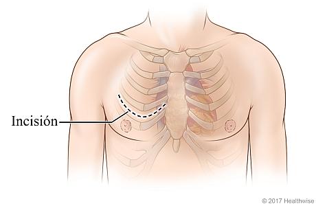 Sitio de la incisión en el pecho entre las costillas para una cirugía menos invasiva