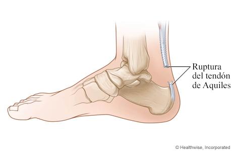 Ruptura del tendón de Aquiles