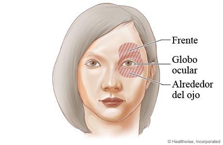 Imagen de las áreas de dolor debido al glaucoma de ángulo cerrado