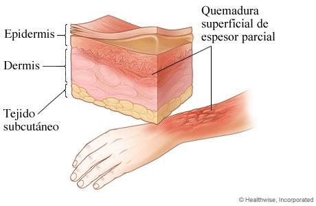 Quemadura de segundo grado: quemadura superficial de espesor parcial