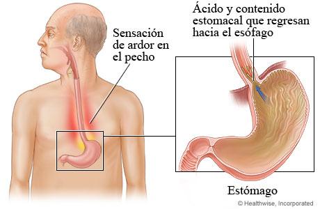 Imagen de la enfermedad de reflujo gastroesofágico (GERD)