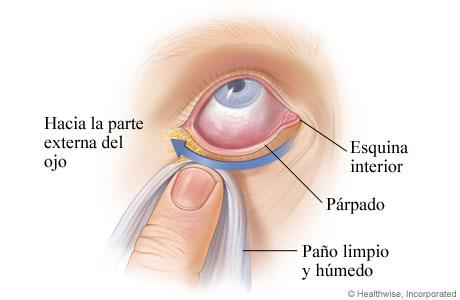 Cómo limpiar un ojo