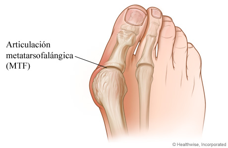 Imagen de un juanete y la articulación de la base del dedo gordo del pie