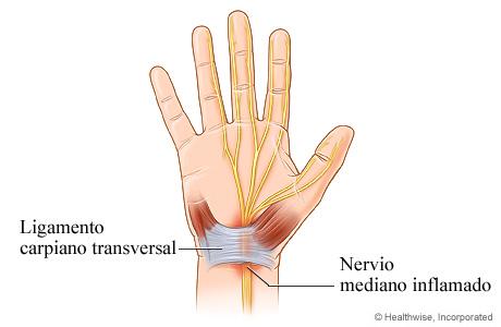 Nervio mediano inflamado en el síndrome del túnel carpiano