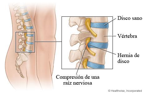 Imagen de una hernia de disco (vista lateral)