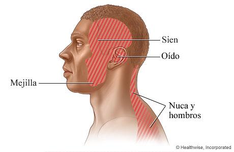 Zonas donde puede haber dolor por trastorno temporomandibular: La mejilla, la sien, el oído, y el cuello y los hombros