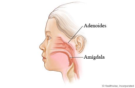 Ubicación de las amígdalas y las adenoides