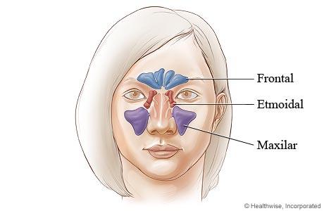 Ubicación de los senos paranasales (vista frontal)