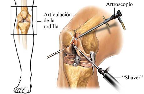 Procedimiento artroscópico