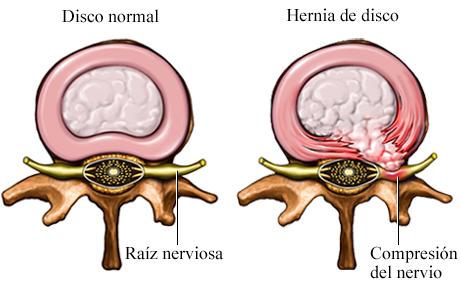 Imagen de un disco normal comparado con una hernia de disco (corte transversal)