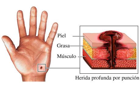 Imagen de una herida por punción