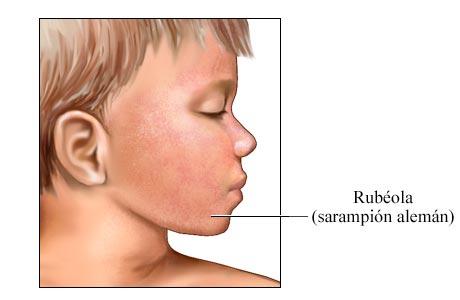 Salpullido de rubéola (sarampión alemán)