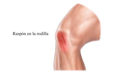 Ilustración de un raspón en la rodilla