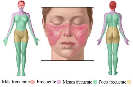 Imagen de lugares comunes donde aparece el salpullido por lupus