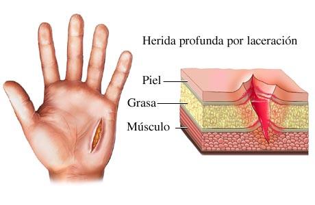 Imagen de una laceración de la piel