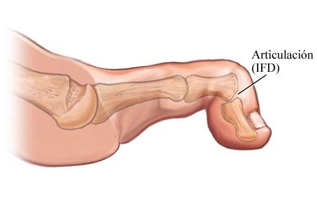 Dedo del pie en maza